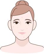 prodotti contro impurità ed acne