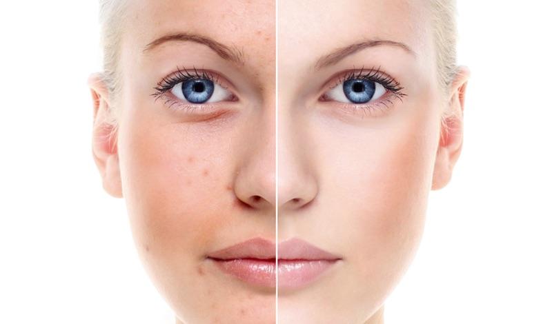 tipologie pelle grasse e impura exuviance